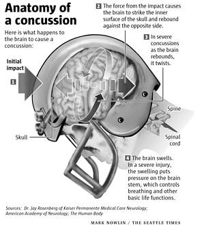 Concussion | Vestibular Disorders Association