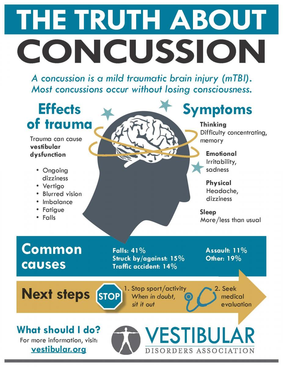 concussion and dizziness infographic