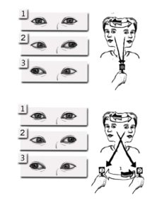 A woman first tracks a fixed point while turning her head side to side, and then tracks a moving target while turning her head side to side.